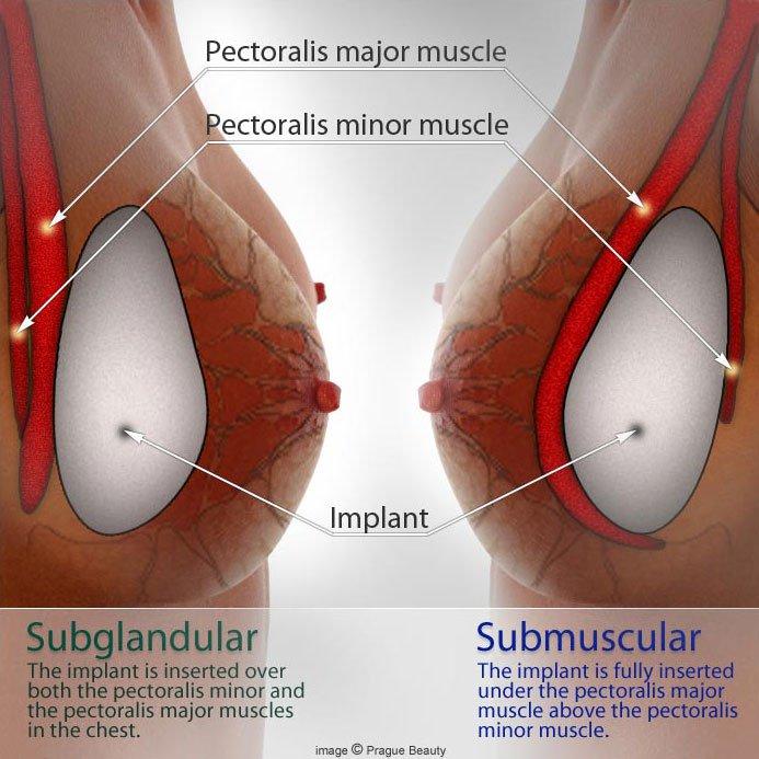 a5b167bba Breast Augmentation - Hair Transplant Institute - Dr. Humayun Mohmand